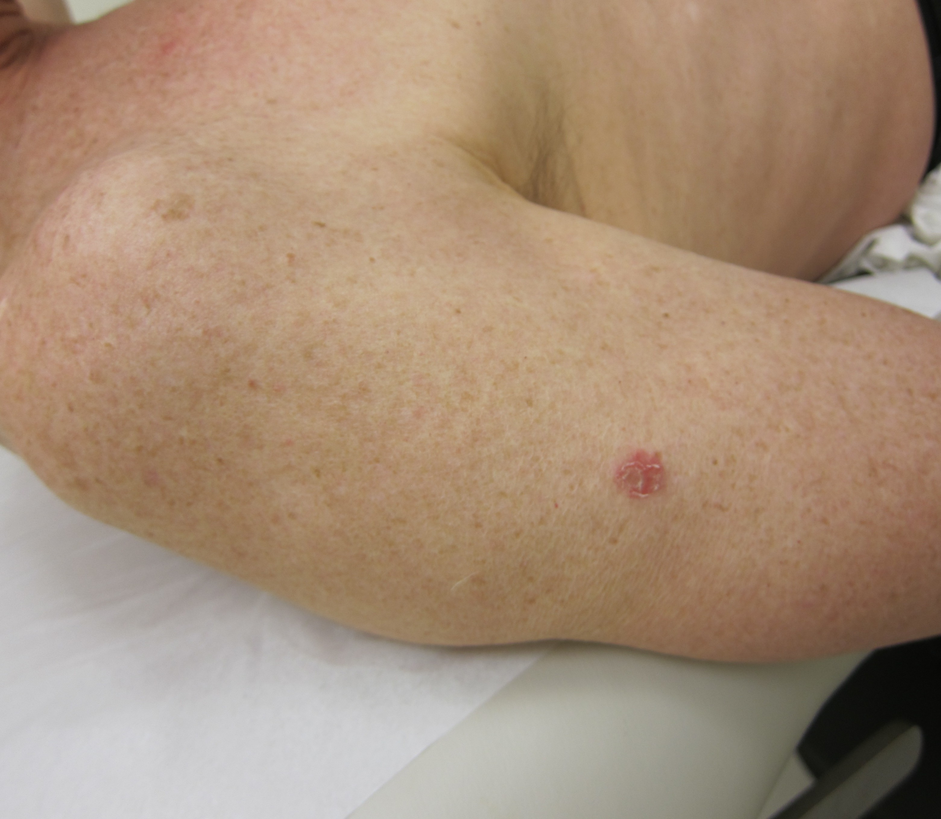 When is Laser Treatment the Best Option for Skin Cancer